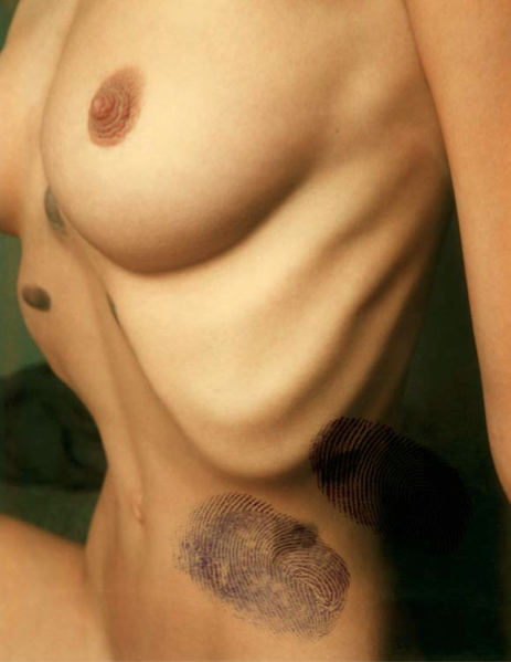 Retouching bruises, 1975. Polaroid. Courtesy of the artist.